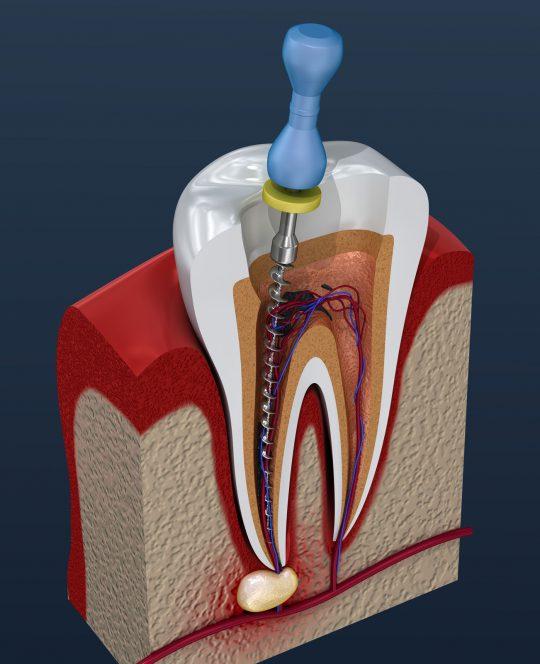 Zahn 3D